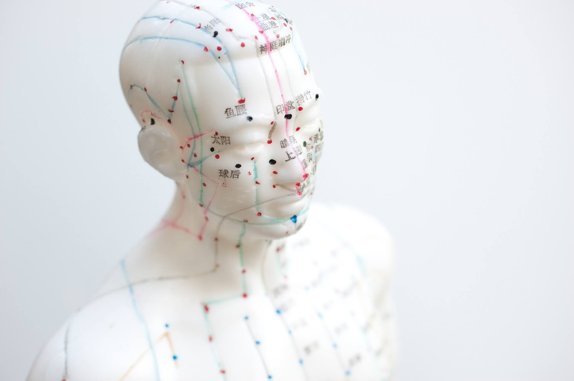 Acupuncture: How Can it Benefit Your Workplace?
